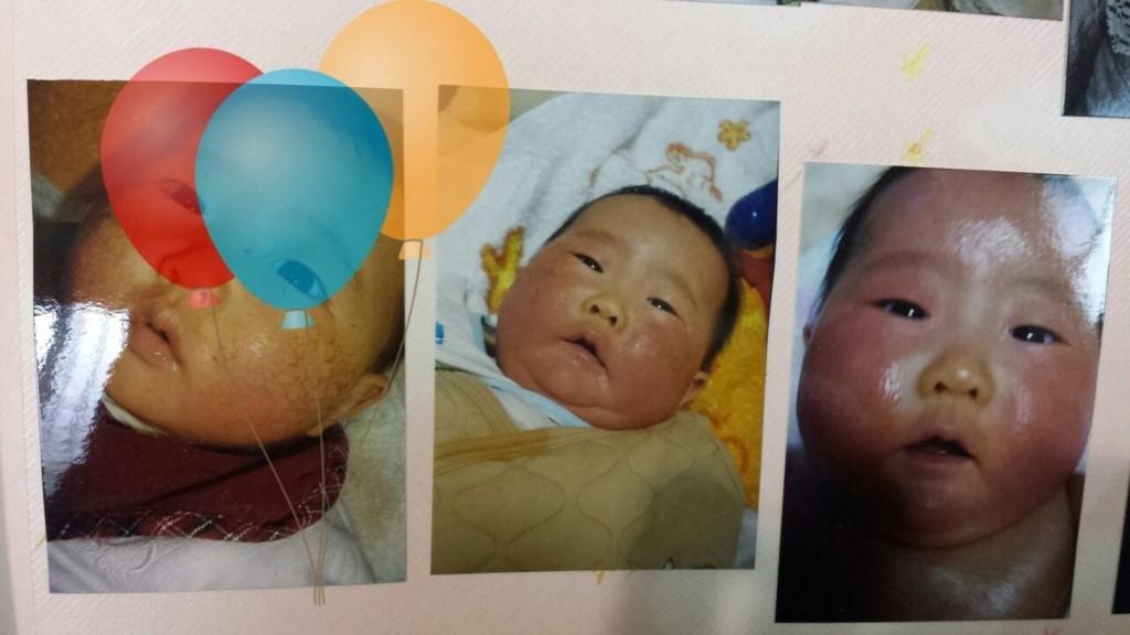 赤ちゃんアレルギー症状画像